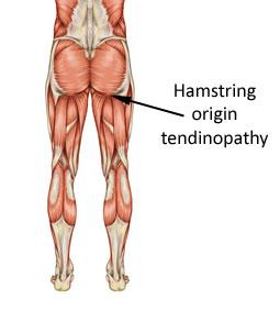 hamstring-origin-tendinopat