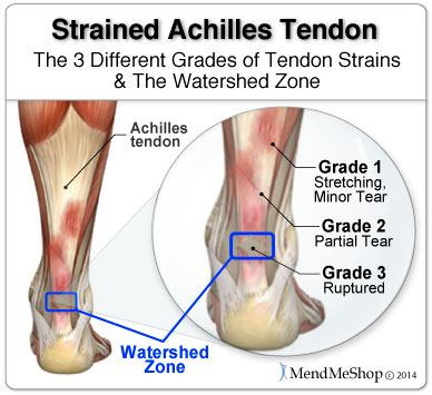 Achilles Tendon Pain Relief The Chronicles Of A Last